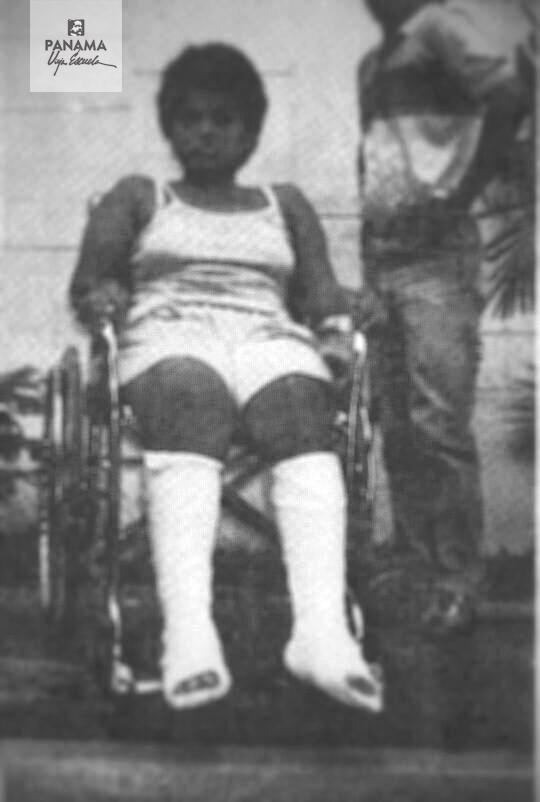 estudiante instituto nacional piernas fracturadas 1988